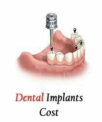 Dental Implant Cost In bangalore